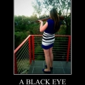 A Black Eye On Its Way2